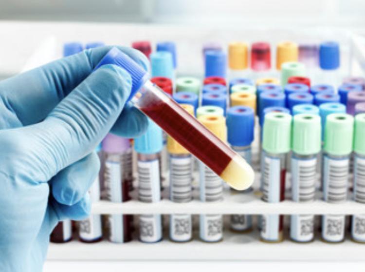3.血液検査